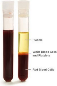 test-tube-labeling-the-plasma-component-of-the-blood